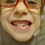 ząb mały